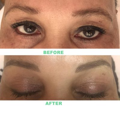 Tattooed Cosmetic Brows